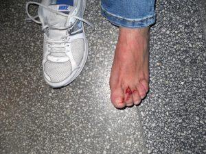 Piciorul rănit al lui Gh. Varga