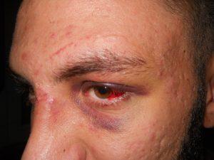 Andrei, tânărul bătut cu pumnii și picioarele de către falșii polițiști