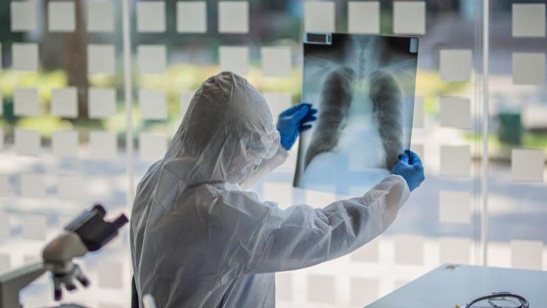 Au fost depistate 420 de noi cazuri de coronavirus. Situația în fiecare județ